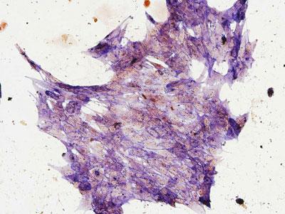 foto de célula